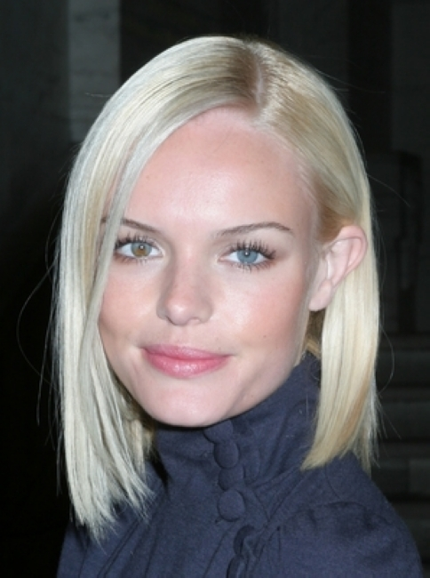 No deformity can ever stop you from being the superstar that you truly are, and that's what we can learn from Kate Bosworth's heterochromia.