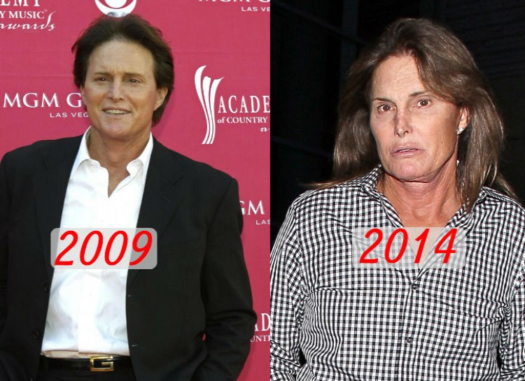 Jenner has been a famous name since his Olympic success in the 1970s, but only reached celebrity status in the mid-2000s when his stepdaughter Kim Kardashian gained fame on her reality show. Since his recent divorce with Kris Jenner, Jenner has been growing out his hair and nails.
