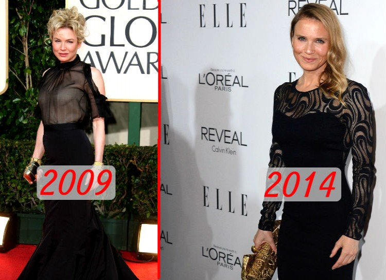 Zellweger has been a well-known actress since the 1990s, which was why it was so shocking to many people when she showed up at an Elle event in 2014 with a much different looking face. The actress commented that the changes were a natural result of aging, but many plastic surgeons are skeptical about that.