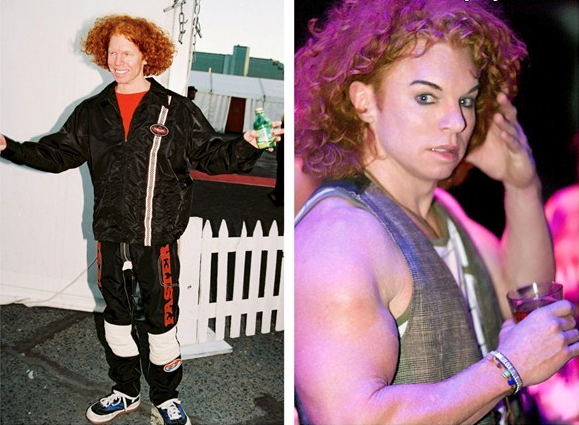 Batch 2- Biggest Celebrity Plastic Surgery Mishaps- Carrot Top