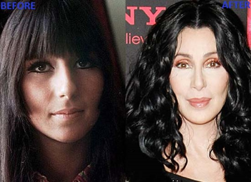 Batch 2- Biggest Celebrity Plastic Surgery Mishaps- Cher