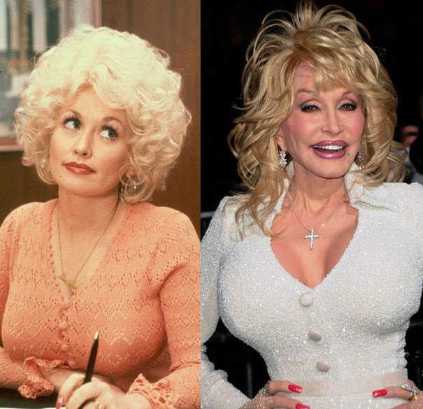 Batch 2- Biggest Celebrity Plastic Surgery Mishaps- Dolly Parton