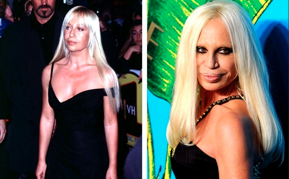 Batch 2- Biggest Celebrity Plastic Surgery Mishaps- Donatella Versace