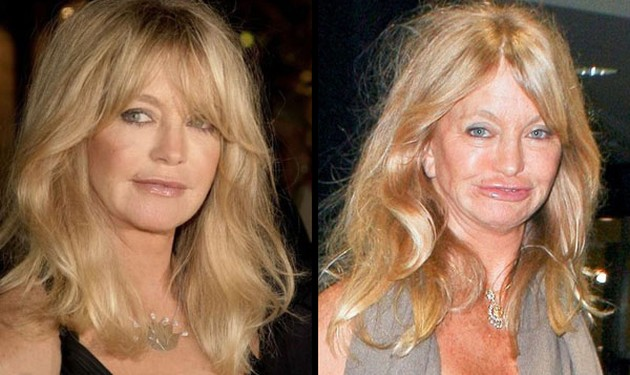 Batch 2- Biggest Celebrity Plastic Surgery Mishaps- Goldie Hawn