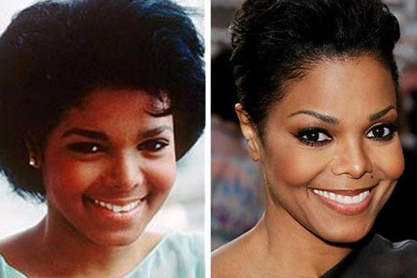 Batch 2- Biggest Celebrity Plastic Surgery Mishaps- Janet Jackson
