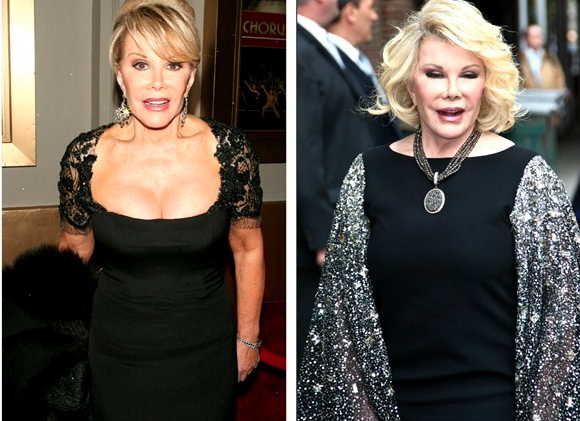 Batch 2- Biggest Celebrity Plastic Surgery Mishaps- Joan Rivers