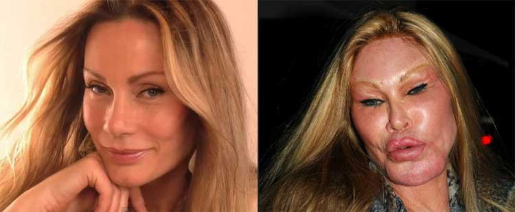 Batch 2- Biggest Celebrity Plastic Surgery Mishaps- Jocelyn Wildenstein