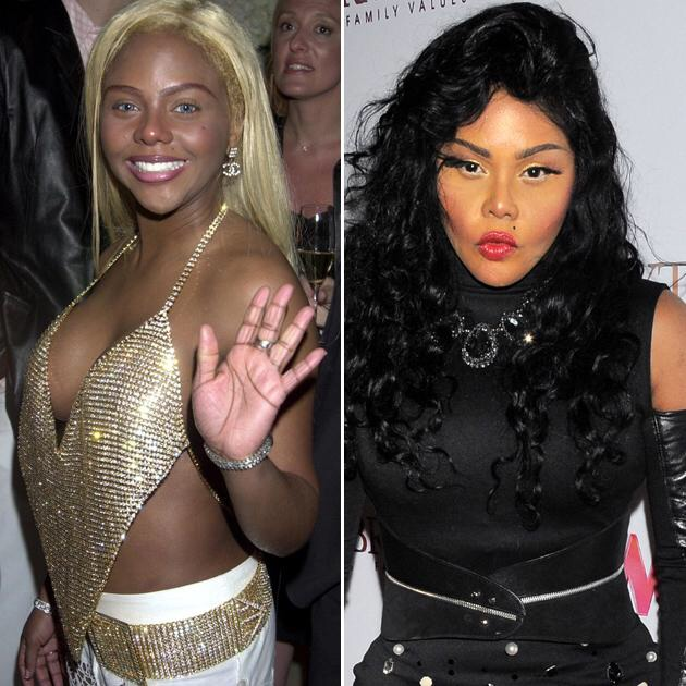 Batch 2- Biggest Celebrity Plastic Surgery Mishaps- Lil Kim