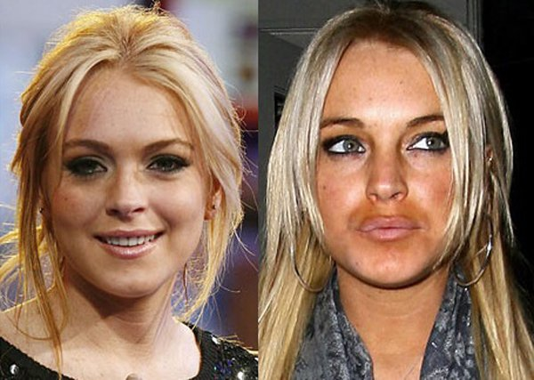 Batch 2- Biggest Celebrity Plastic Surgery Mishaps- Lindsay Lohan