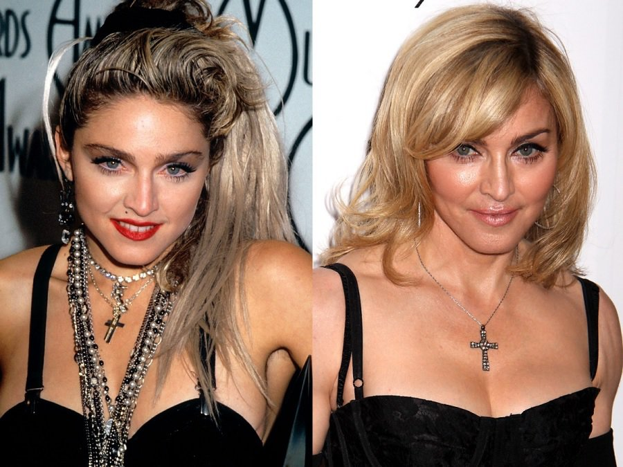 Batch 2- Biggest Celebrity Plastic Surgery Mishaps- Madonna