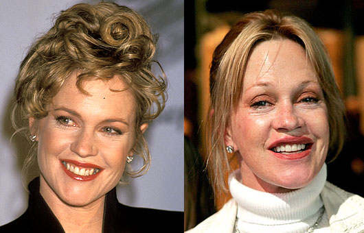 Batch 2- Biggest Celebrity Plastic Surgery Mishaps- Melanie Griffith