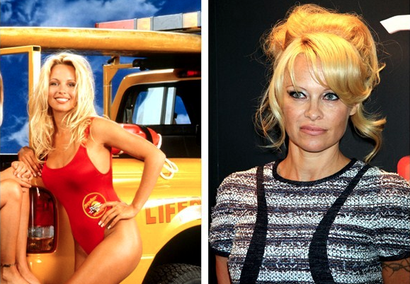 Batch 2- Biggest Celebrity Plastic Surgery Mishaps- Pamela Anderson