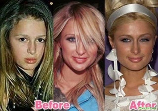 Batch 2- Biggest Celebrity Plastic Surgery Mishaps- Paris Hilton