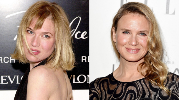 Batch 2- Biggest Celebrity Plastic Surgery Mishaps- Renee Zellweger