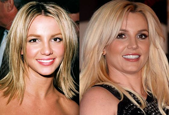 Batch 3- Stars Who Failed to Age Gracefully- Britney Spears