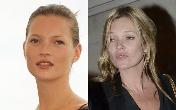Batch 3- Stars Who Failed to Age Gracefully- Kate Moss