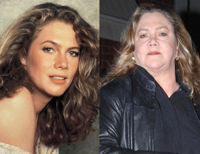 Batch 3- Stars Who Failed to Age Gracefully- Kathleen Turner
