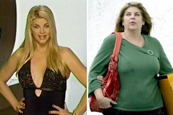 Batch 3- Stars Who Failed to Age Gracefully- Kirstie Alley