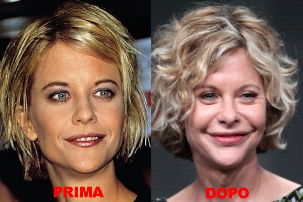 Batch 3- Stars Who Failed to Age Gracefully- Meg Ryan