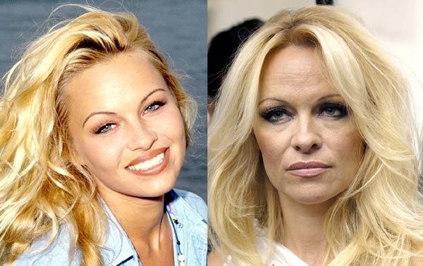 Batch 3- Stars Who Failed to Age Gracefully- Pamela Anderson