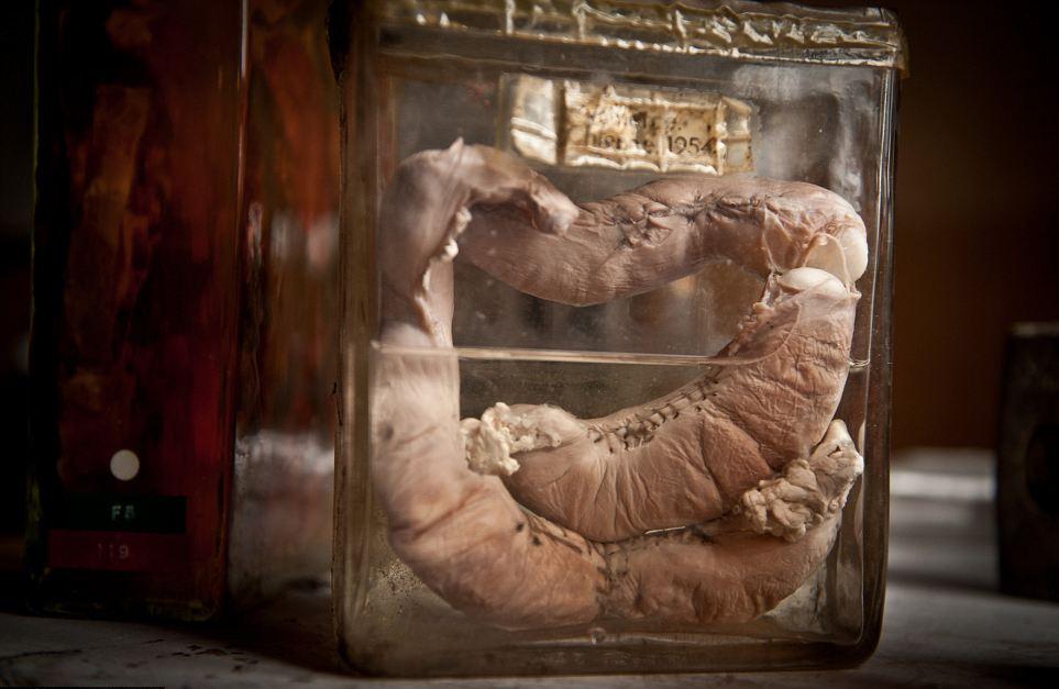 preserved gut