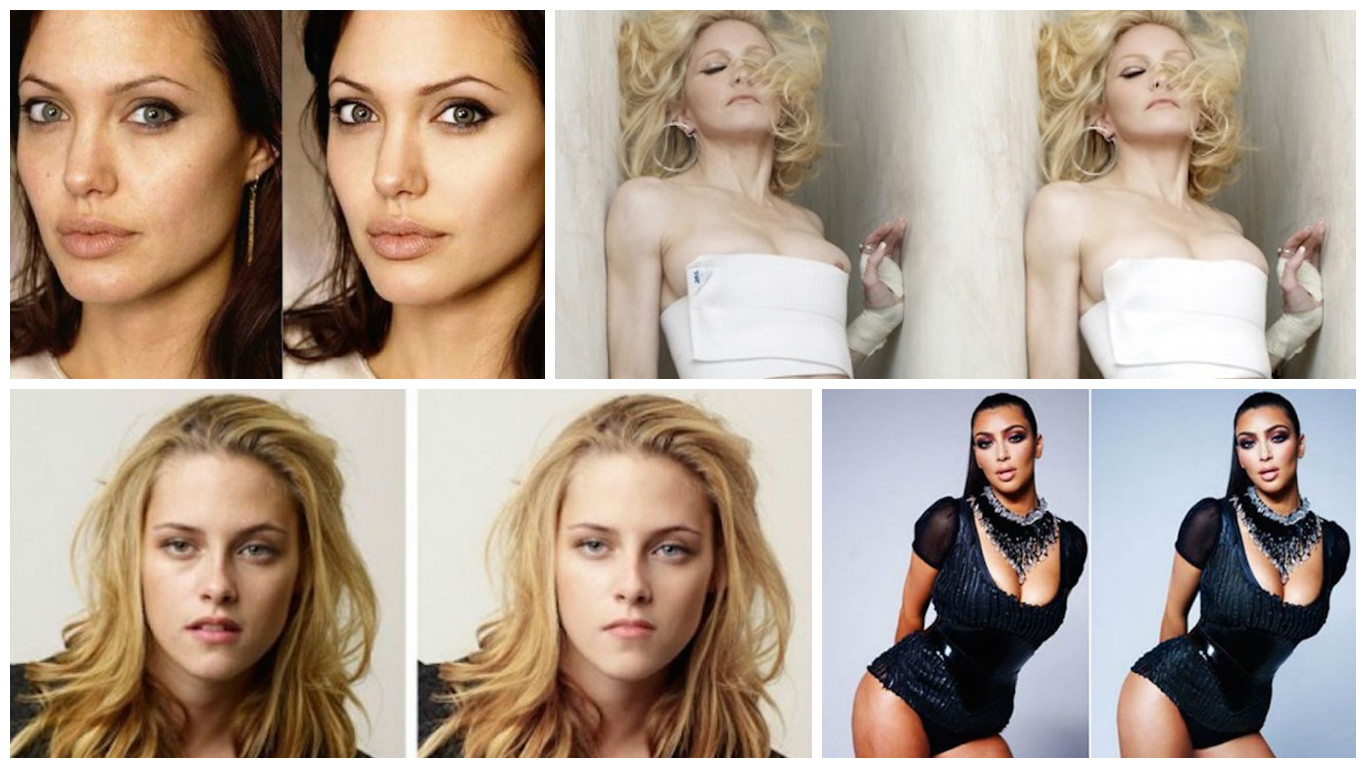Celebrity plastic surgery before and after | Gallery ...