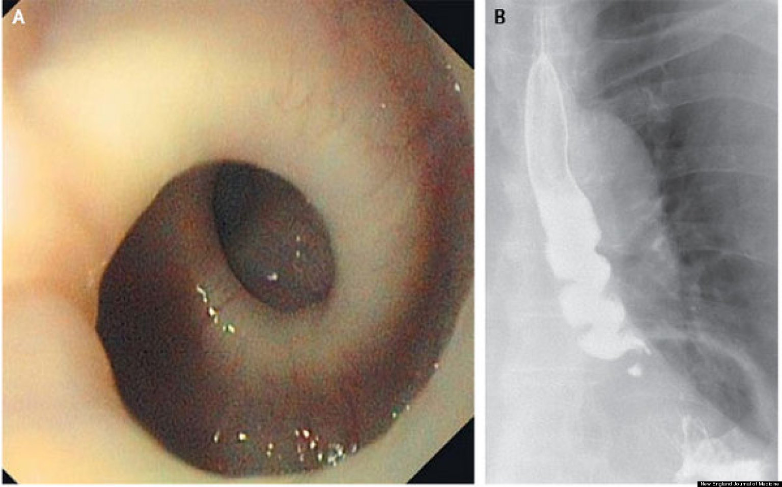 spiraled esophagus