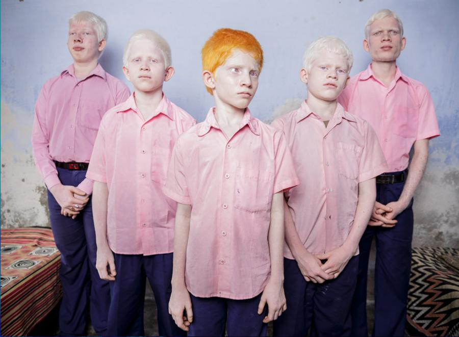 012--7-blind-albino-boys-529e2bcf8cf85a2ad21b14eb1c62386b
