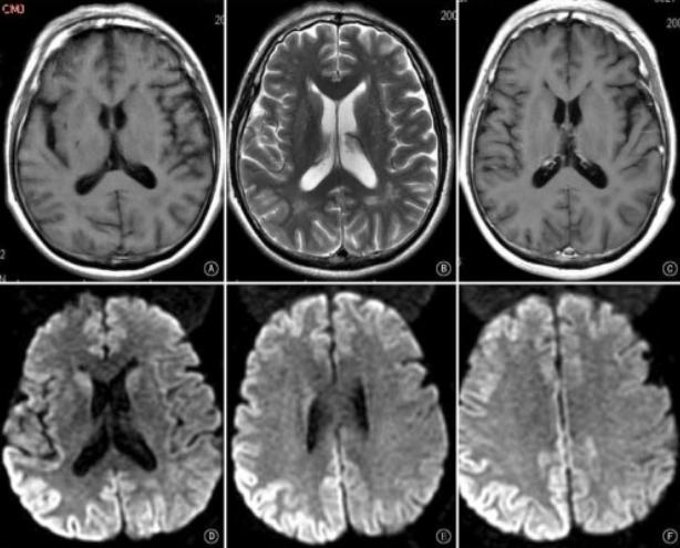 011--2-creutzfeldt-jakob-disease-551525