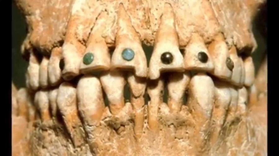005-10-ancient-dentists-preserved-smiles-05fcdf9515c7859ae6d38549db22ebb2