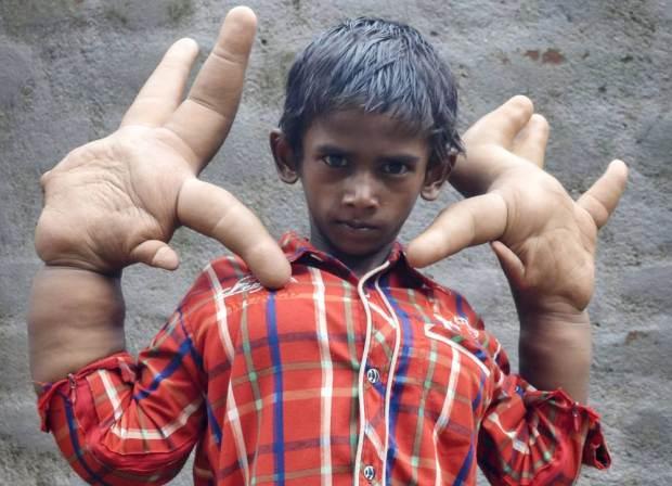 Edward Giant Hands