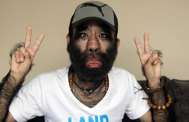 World's Hairiest Man