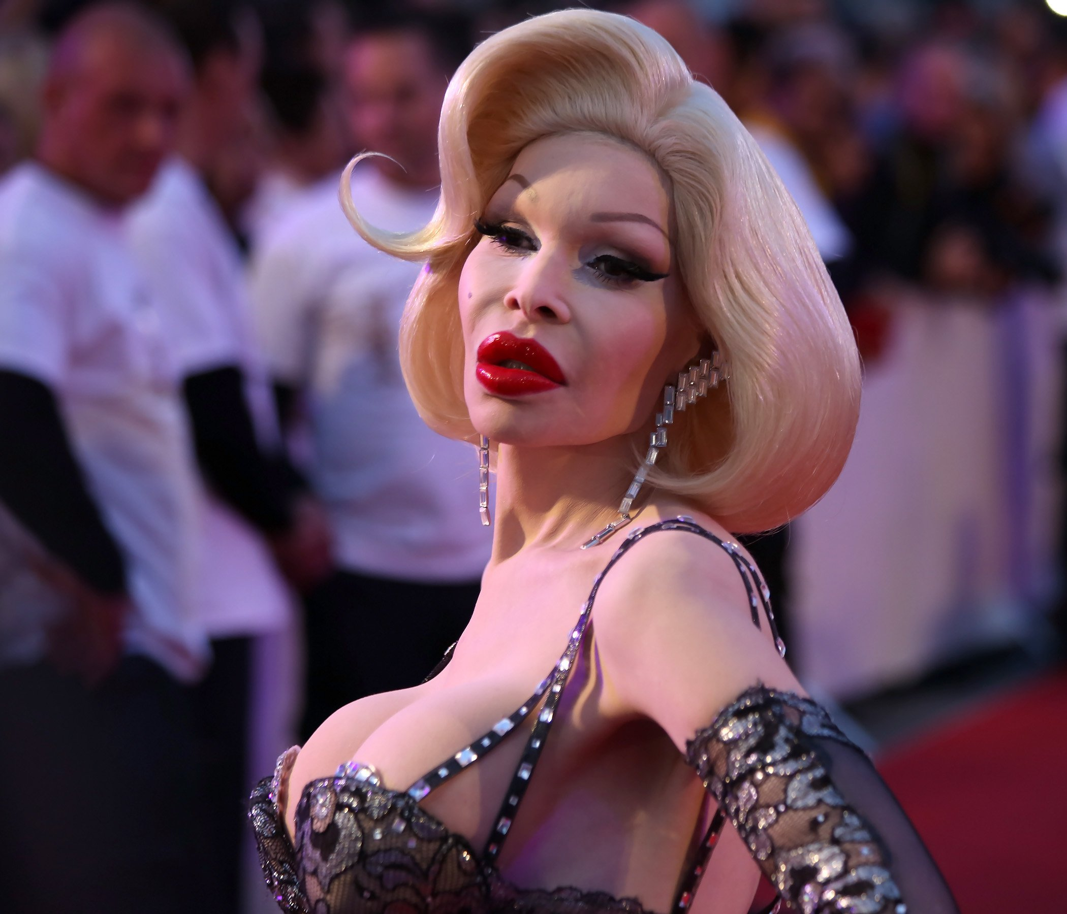 Batch 2- Biggest Celebrity Plastic Surgery Mishaps- Amanda Lepore