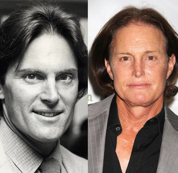 Batch 2- Biggest Celebrity Plastic Surgery Mishaps- Bruce Jenner