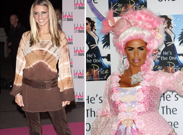 Batch 2- Biggest Celebrity Plastic Surgery Mishaps- Katie Price