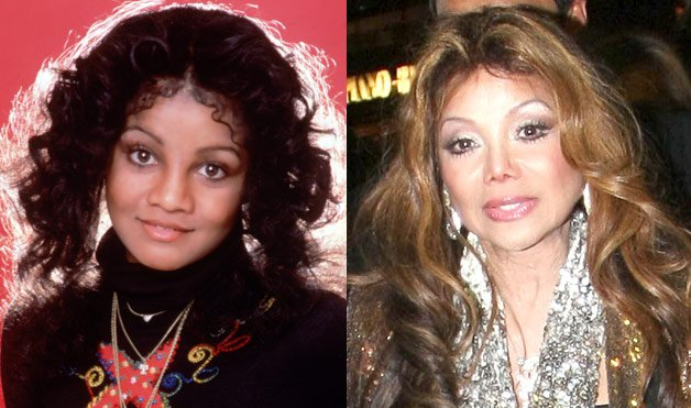 Batch 2- Biggest Celebrity Plastic Surgery Mishaps- Latoya Jackson