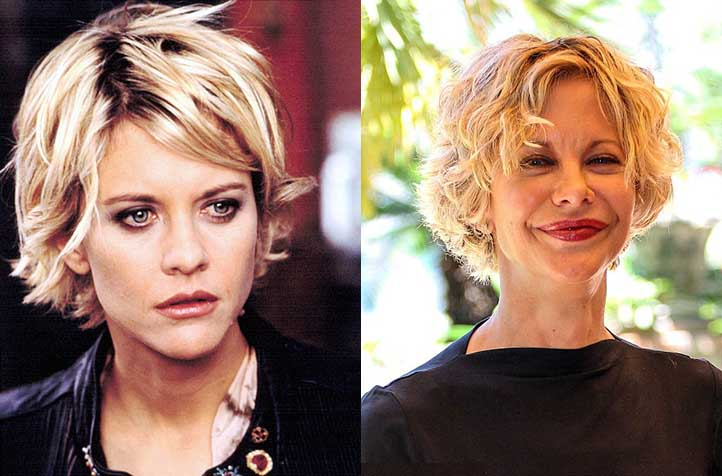 Batch 2- Biggest Celebrity Plastic Surgery Mishaps- Meg Ryan