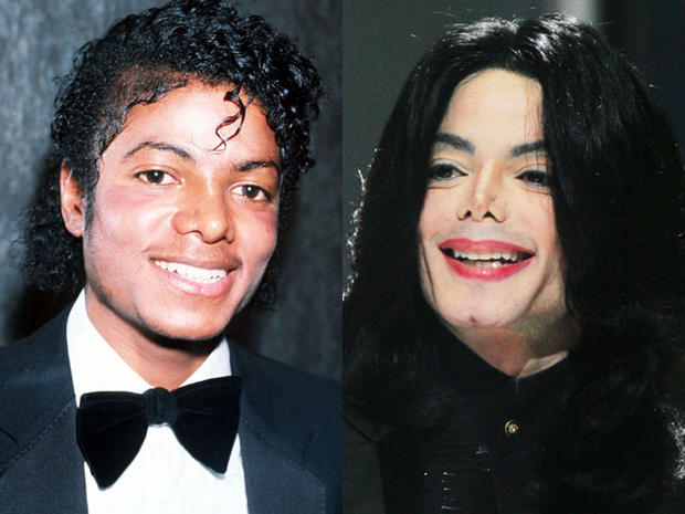 Batch 2- Biggest Celebrity Plastic Surgery Mishaps- Michael Jackson