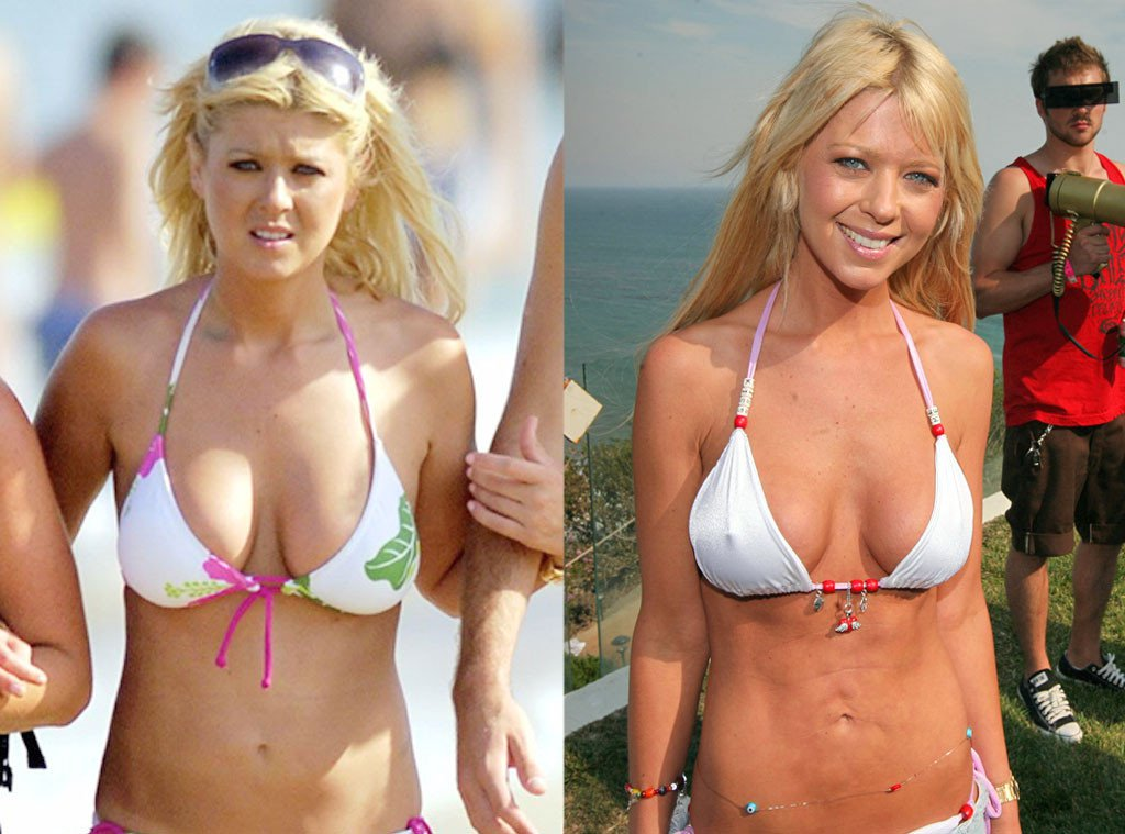 Batch 2- Biggest Celebrity Plastic Surgery Mishaps- Tara Reid