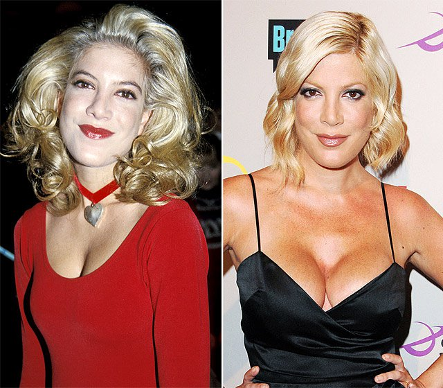 Batch 2- Biggest Celebrity Plastic Surgery Mishaps- Tori Spelling