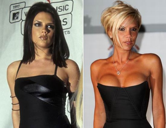 Batch 2- Biggest Celebrity Plastic Surgery Mishaps- Victoria Beckham