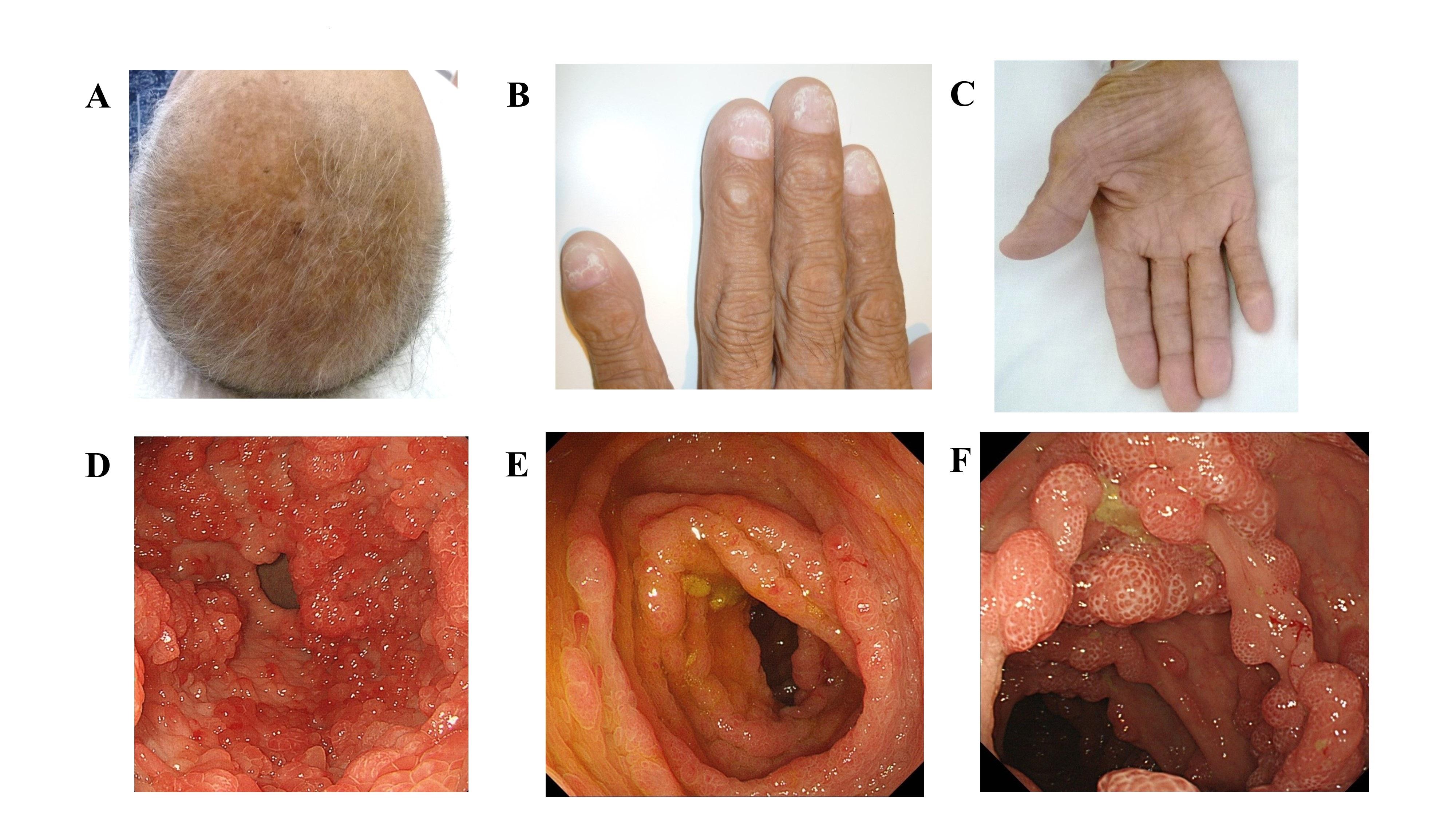 cronkhite-canada syndrome